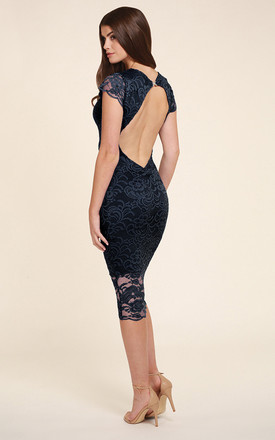 Faye Lace Navy Backless Midi Dress by Honor Gold Product photo